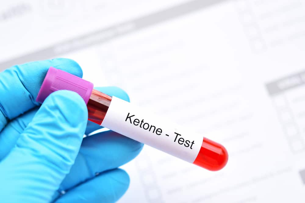 ketone urine test